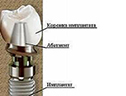 структура имплантанта