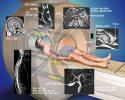 Исследование магнитно-резонансной томографией