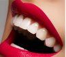 пломбирование зуба в Николаеве